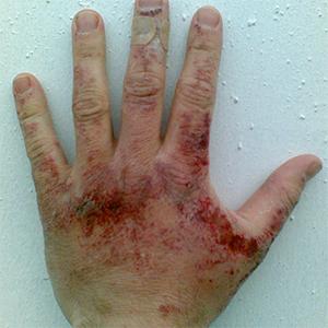 radiation-burn-hand