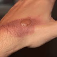 Second-Degree Burn on Top of Hand