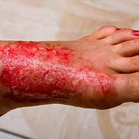 Third-Degree Burn on Top of Foot