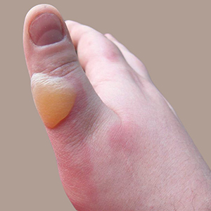 sunburned-feet